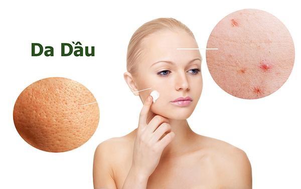 Da nhờn thường có lỗ chân lông to và dễ nổi mụn